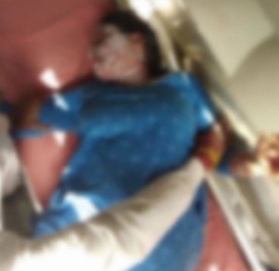 patan lady receives burns admitted to hospital