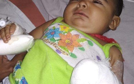6 months old girl in vs hospital